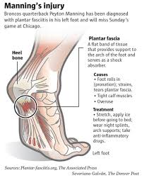 Planters Fasciitis Surgery by Explainer Treatment Recovery Time From Torn Plantar Fascia U2013 The