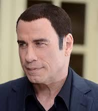 declan donnelly hair transplant bald celebrities ok pharmacy health blog