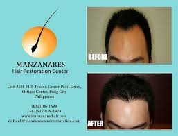 hair transplant costs in the philippines manzanares hair restoration center affordable hair transplant