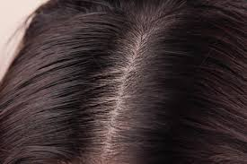 Dandruff And Hair Loss How To Clean Sebum From The Scalp Livestrong Com