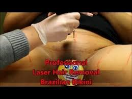 brazilian laser hair removal pictures the 25 best laser hair removal ideas on pinterest laser hair