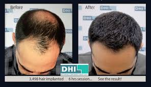 dhi hair transplant reviews dhi india in new delhi delhi