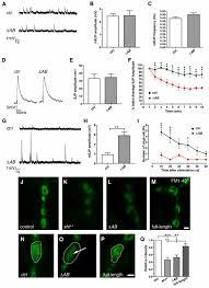 the dynamin binding domains of dap160 intersectin affect bulk