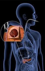 Anatomy Pancreas Human Body Scattering Tool Peers Into Pancreas To Find Cancer