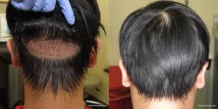 fue haircuts male hair transplant smart hair transplant