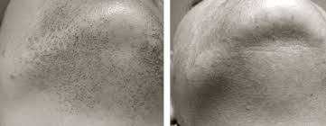 gray pubic hairs laser hair removal atlanta before after pictures