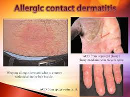 allergic to belt buckle vesicular and crusted contact eczema of the cosmetic allergy