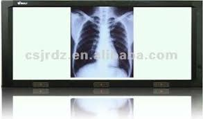 x ray light box for sale best sale light box for x ray films buy led light box medical