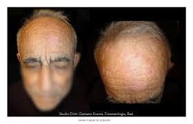 prurito testa e corpo prurito senile dr gaetano scanni