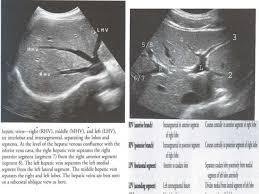 Radiology Anatomy Radiological Anatomy Of Hepatobiliary System