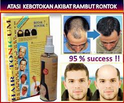 obat rambut penumbuh rambut botak mengatasi rambut rontok obat penumbuh rambut hair tonicum untuk mengatasi rambut rontok