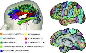The Anatomy Of The Human Brain Disorders Of Visual Perception Journal Of Neurology
