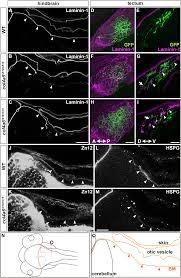 D Collagen type iv collagen controls the axogenesis of cerebellar granule cells