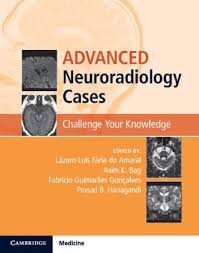 Challenge Your Advanced Neuroradiology Cases Challenge Your Knowledge By Lazaro
