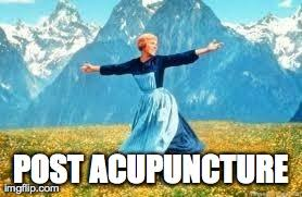 Acupuncture Meme - know the feeling benefits of acupuncture pinterest acupuncture