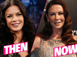 catherine zeta jones catherine zeta jones plastic surgery disaster exposed by top docs