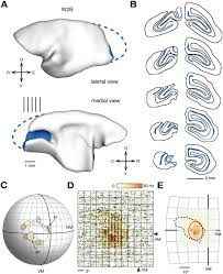Cortical Blindness May Result From The Destruction Of Visually Evoked Responses In Extrastriate Area Mt After Lesions Of