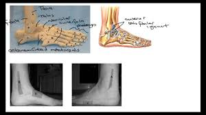 Ankle Anatomy Ligaments Trainee Clinical Practitioner Ankle Foot Bones Ligaments Ottawa
