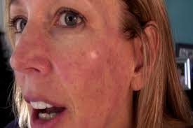 intense pulsed light review ipl photofacial review