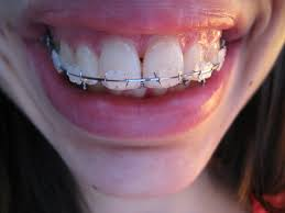 mon orthodontie adulte page 3