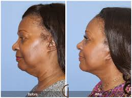 hairstyles that cover face lift scars ethnic facelift what you need to know dr kevin sadati