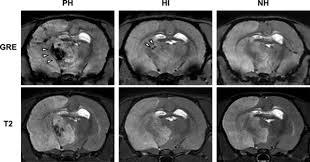 hemorrhagic transformation after large cerebral infarction in rats