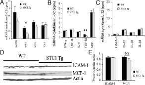 anti inflammatory and renal protective actions of stanniocalcin 1