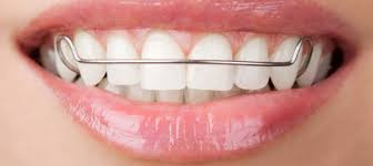 nickel free braces picking the right type of retainer for your post braces removal