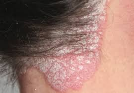 light treatment for scalp psoriasis new therapy for difficult to treat nail and scalp psoriasis the