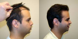 hair transplants in tj reviews hair plugs for receding hairline hairstyle ideas