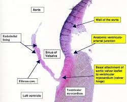 Borders Of The Heart Anatomy Anatomy Of The Aortic Valvar Complex And Its Implications For