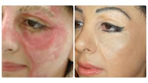 how to colour in a scar in your hairline basma hameed creates booming business tattooing scars business