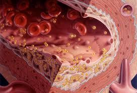 high cholesterol diet food list answers on healthtap