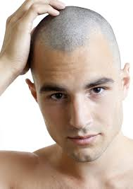 before and after thinning mens haircut a no guard haircut buzzed to a uniform length all over the head