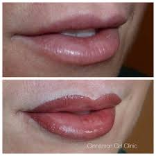 cinnamon clinic lip tattoos