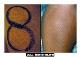 tattoo removal does it work how does tattoo removal work 14