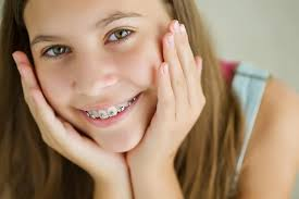 Braces Girl Meme - can i get braces just on my top or bottom teeth orthodontist