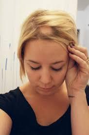 bandage hair shaped pattern baldness skin problems 2 9 webdicine
