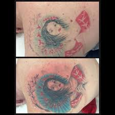 100 red tattoo removal picosure picosure instagram photos