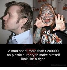 Meme Plastic Surgery - a man spent more than 200000 on plastic surgery to make himself