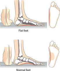 best shoes for flat feet feet genius