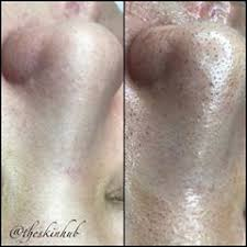 professional skincare services theskinhub instagram videos and