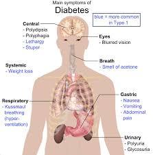 diabetes mellitus endocrine medbullets step 2 3