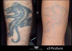 undo your tattoo with picosure laser tattoo removal at carolina