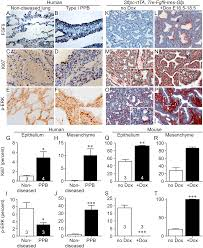 fibroblast growth factor 9 regulation by micrornas controls lung