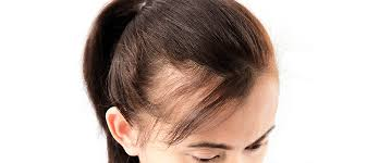 types symptoms of hair loss u0026 treatments available