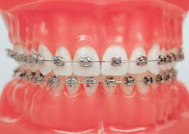this is what braces will look like for me soon bunny u0027s