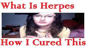 Challenge Kid Gets Herpes Herpes Cure Herpes Is Curable Now With Herpes Cure
