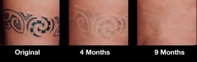 tat b gone tattoo removal system 1 month supply walmart com