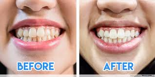 pro light dental whitening system reviews i went for non invasive teeth whitening this is why it s so